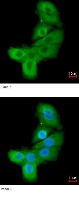 Immunocytochemistry/ Immunofluorescence - Anti-LIMK2 antibody (ab97773)