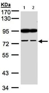 Western blot - Anti-FSD2 antibody (ab97786)