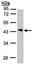 Western blot - Anti-PDCL antibody (ab97790)