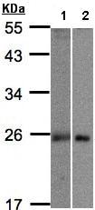 Western blot - Anti-MID1IP1 antibody (ab97806)