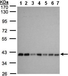 Western blot - Anti-SLC25A33 antibody (ab97820)