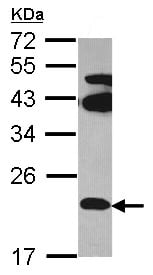 Western blot - Anti-FAM18B antibody (ab97830)