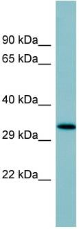 Western blot - Anti-Surfactant protein D / SP-D antibody (ab97849)