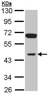 Western blot - Anti-INPP1 antibody (ab97912)