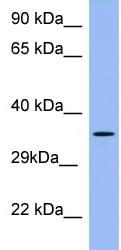 Western blot - Anti-PSG5 antibody (ab97940)