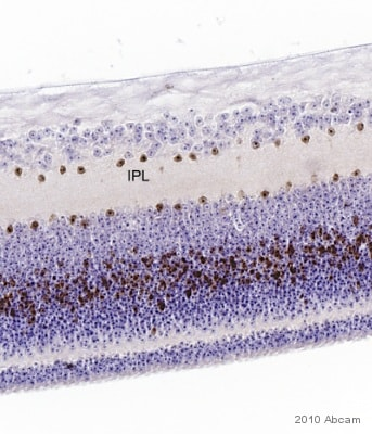 Immunohistochemistry (Formalin/PFA-fixed paraffin-embedded sections) - Anti-SOX2 antibody (ab97959)