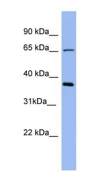 Western blot - Anti-Uromucoid antibody (ab98011)