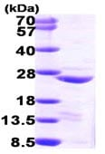SDS-PAGE - Recombinant Human COMMD1/MURR1 protein (ab98077)