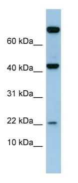 Western blot - Anti-Leptin antibody (ab98090)