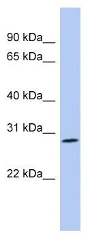 Western blot - Anti-Enkephalin antibody (ab98128)