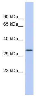 Western blot - Anti-FCN3 antibody (ab98136)