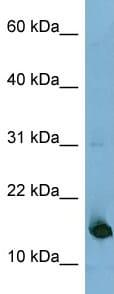 Western blot - Anti-MED31 antibody (ab98142)