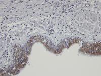 Immunohistochemistry (Formalin/PFA-fixed paraffin-embedded sections) - Anti-SHKBP1 antibody (ab98148)