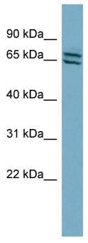 Western blot - Anti-PDE1C antibody (ab98194)