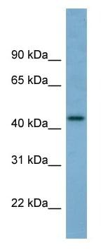Western blot - Anti-TRIM31 antibody (ab98207)