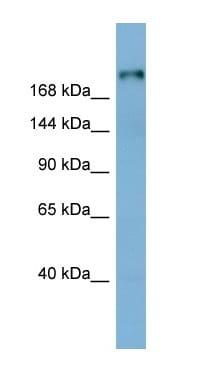 Western blot - Anti-Laminin beta 1 antibody (ab98232)
