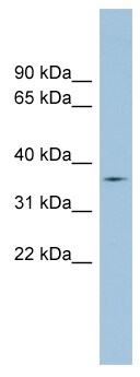 Western blot - Anti-TMPRSS12 antibody (ab98263)