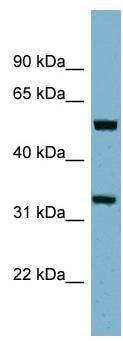 Western blot - Anti-TMEM158 antibody (ab98335)