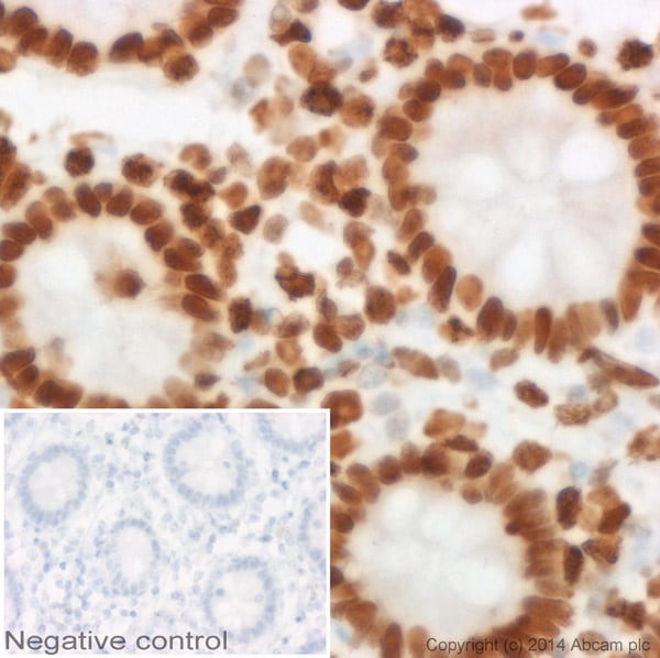 Immunohistochemistry (Formalin/PFA-fixed paraffin-embedded sections) - Goat Anti-Mouse IgG1 (HRP) preadsorbed (ab98693)