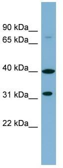Western blot - Anti-FRRS1L antibody (ab98878)