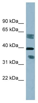 Western blot - Anti-DHRS7B antibody (ab98880)