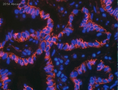 Immunocytochemistry/ Immunofluorescence - Anti-N Cadherin antibody [5D5] - Intercellular Junction Marker (ab98952)