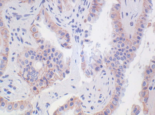Immunohistochemistry (Formalin/PFA-fixed paraffin-embedded sections) - Anti-N Cadherin antibody [5D5] - Intercellular Junction Marker (ab98952)