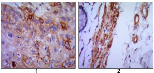 Immunohistochemistry (Formalin/PFA-fixed paraffin-embedded sections) - Anti-VCAM1 antibody [6G9] (ab98954)