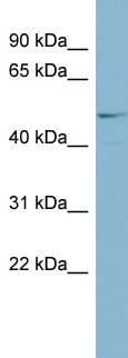 Western blot - Anti-ANGPTL3 antibody (ab99020)