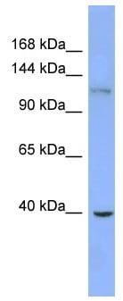 Western blot - Anti-ZNF827 antibody (ab99052)
