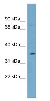 Western blot - Anti-SLC39A2 antibody (ab99071)