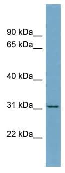 Western blot - Anti-FGL1 antibody (ab99144)