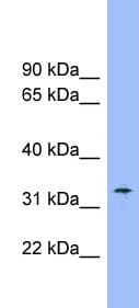 Western blot - Anti-Slc25a1 antibody (ab99168)