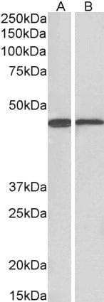 Western blot - Anti-ACAT1 antibody (ab99190)