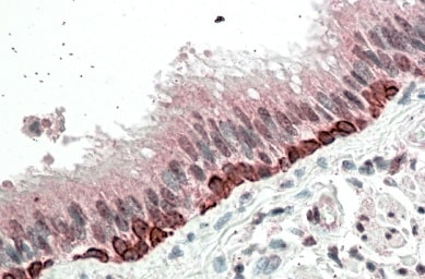 Immunohistochemistry (Formalin/PFA-fixed paraffin-embedded sections) - Anti-FOXI3 antibody (ab99191)