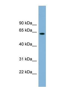 Western blot - Anti-SLFN12 antibody (ab99198)
