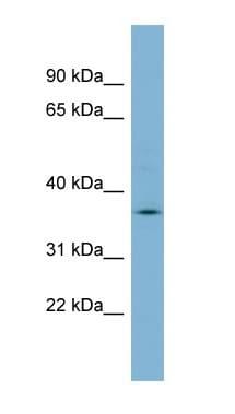 Western blot - Anti-MARCH9 antibody (ab99231)