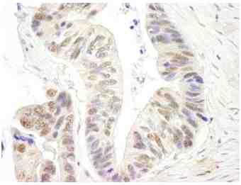 Immunohistochemistry (Formalin/PFA-fixed paraffin-embedded sections) - Anti-XPG antibody (ab99248)