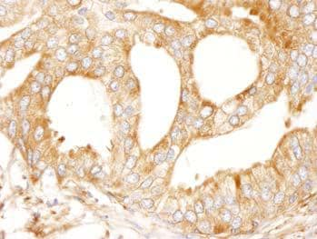 Immunohistochemistry (Formalin/PFA-fixed paraffin-embedded sections) - Anti-MAP4 antibody (ab99258)