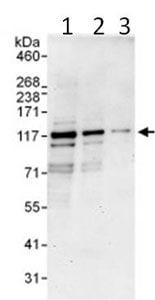 Western blot - Anti-PDE3B antibody (ab99289)