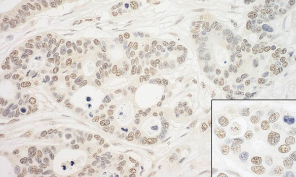 Immunohistochemistry (Formalin/PFA-fixed paraffin-embedded sections) - Anti-PRP6/ANT-1 antibody (ab99292)