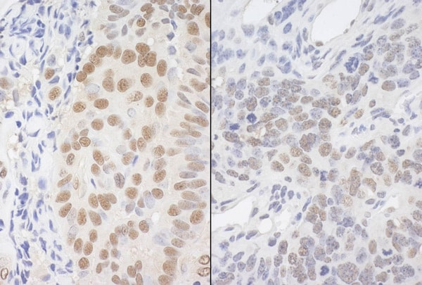 Immunohistochemistry (Formalin/PFA-fixed paraffin-embedded sections) - Anti-Apoptosis inhibitor 5 antibody (ab99308)