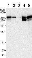 Western blot - Anti-CAD/BM1 antibody (ab99312)