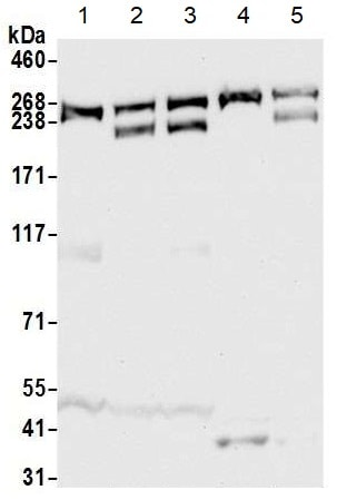 Western blot - Anti-CAD/BM1 antibody (ab99313)