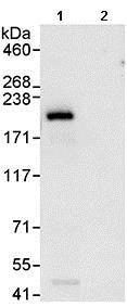 Immunoprecipitation - Anti-UACA/Nucling antibody (ab99323)