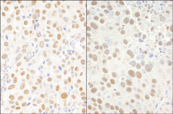 Immunohistochemistry (Formalin/PFA-fixed paraffin-embedded sections) - Anti-CPSF6 antibody (ab99347)