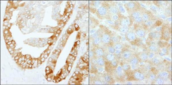 Immunohistochemistry (Formalin/PFA-fixed paraffin-embedded sections) - Anti-Fatty Acid Synthase antibody (ab99359)