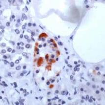 Immunohistochemistry (Formalin/PFA-fixed paraffin-embedded sections) - Anti-GAD67 antibody (ab99384)