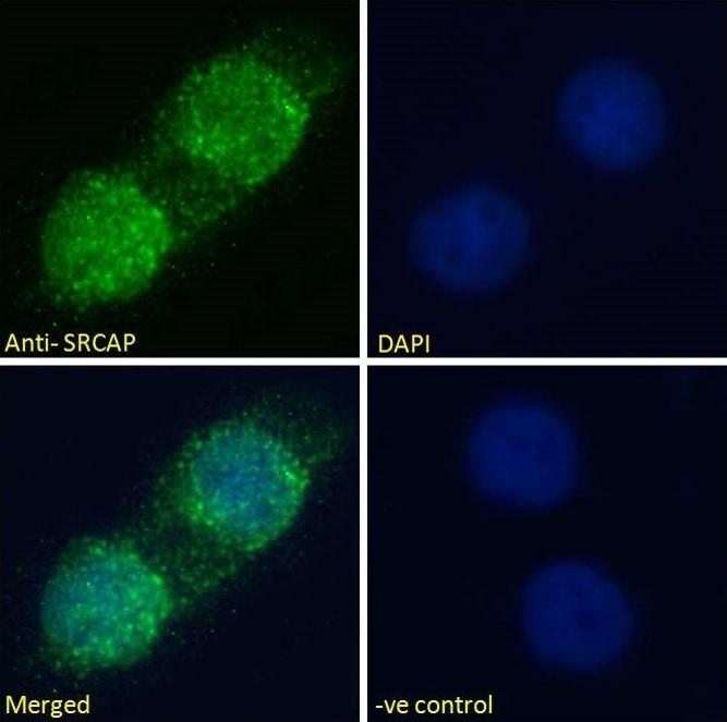 Immunocytochemistry/ Immunofluorescence - Anti-SRCAP antibody (ab99408)