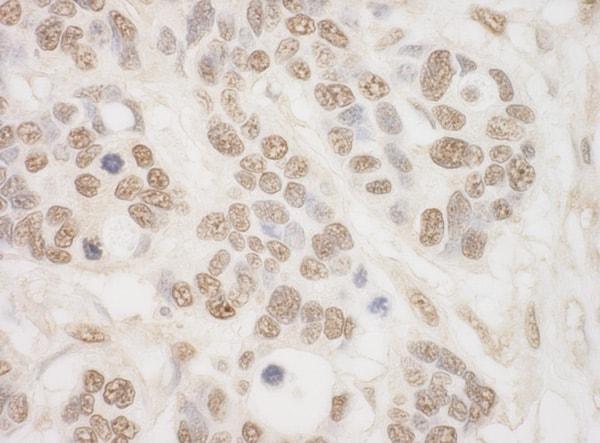 Immunohistochemistry (Formalin/PFA-fixed paraffin-embedded sections) - Anti-MSK2 / RSK-B antibody (ab99411)